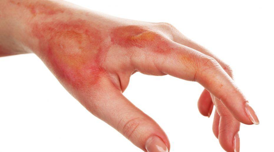Cách xử lý khi bị rối loạn tiêu hóa và bị bỏng
