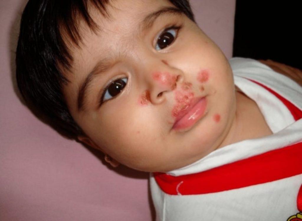 Dấu hiệu khi trẻ bị chốc lở ngoài da và cách điều trị