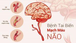 Bài thuốc giúp hạn chế tai biến mạch máu não của mọi người hiện nay